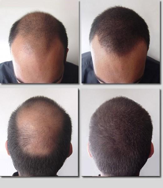 Tatouage cheveux homme