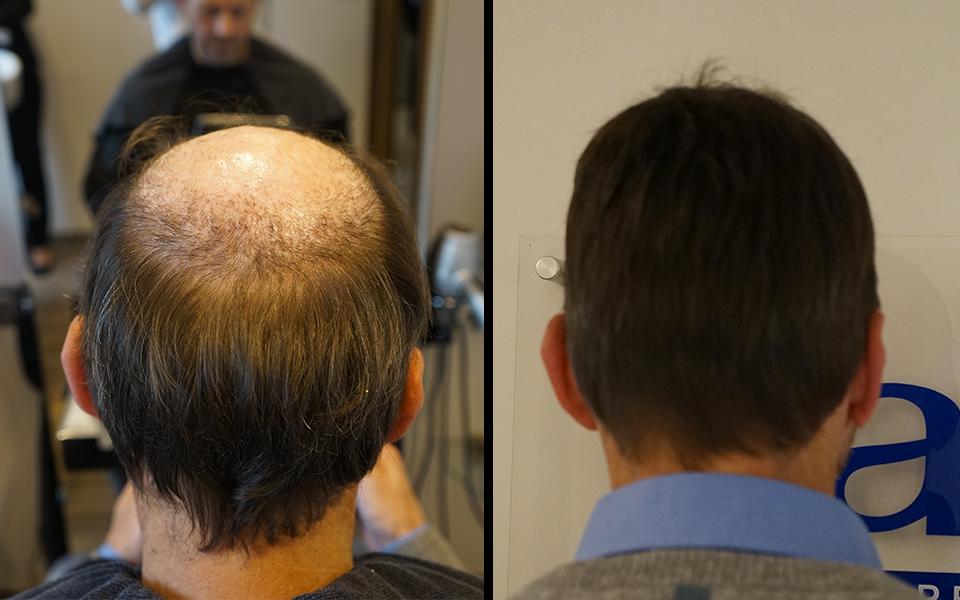 hairfax la solution pour la perte de cheveux biblond pour les coiffeurs. Black Bedroom Furniture Sets. Home Design Ideas