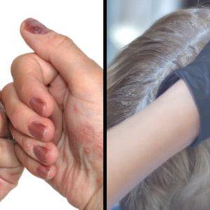 Coiffeurs, protégez vos mains !