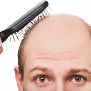 Fiche pédagogique : les anomalies de croissance du cheveu