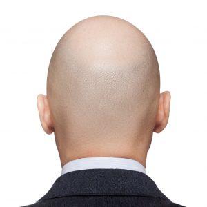 Des cheveux, oui, mais à quel prix ? Alerte au Propecia !